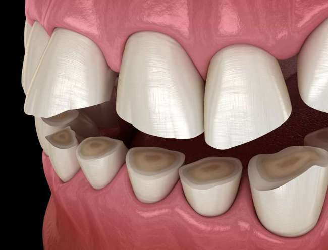 Teeth Grinding- Why You Do It and How to Stop