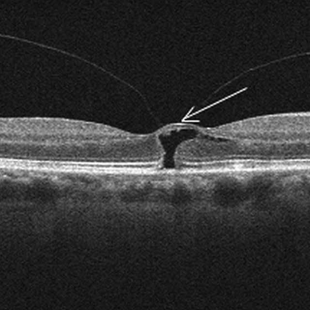 Surgery of vitreo-macular traction syndrome and macular hole